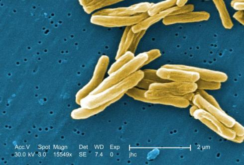 Scanning electron micrograh of TB bacterium/ image: CDC/Dr. Ray Butler, credit: Janice Haney Carr